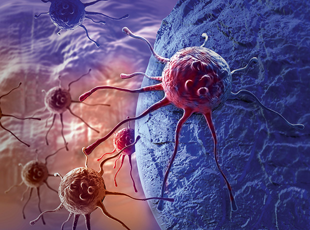 Triggering an Immune Response in Ovarian Cancer