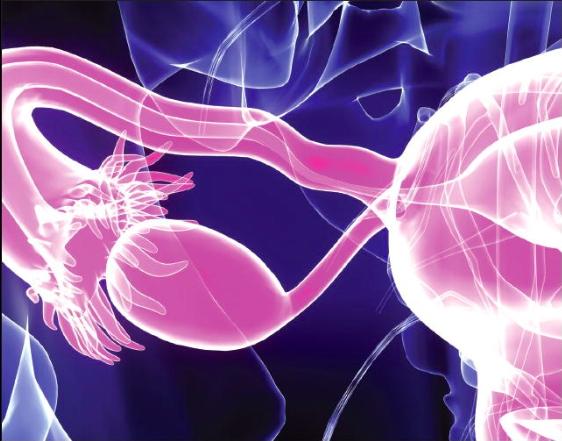 Precision Medicine: A New Era for Ovarian Cancer