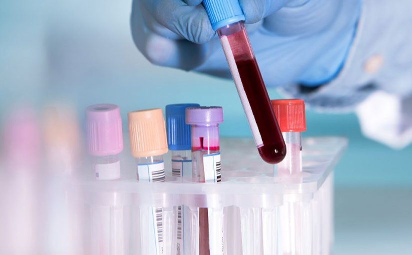 New Blood Test Could Spare Cancer Patients From Unnecessary Chemotherapy