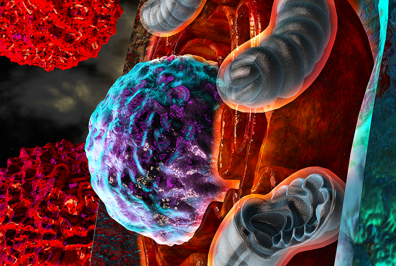 Ovarian Cancer Thwarts Immune Cells By Revving Up Stress Clearity Foundation