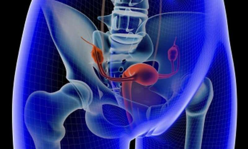 Could Conservative Management of Adnexal Masses Lead to Ovarian Cancer?