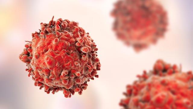 New Class of Drugs Could Treat Ovarian Cancer