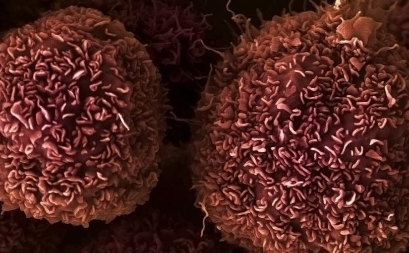 CRISPR Reveals New Cancer Drug Targets through ID of Critical Gene Fusion Regions