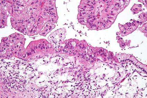 Changes in the Metabolism of Normal Cells Promotes the Metastasis of Ovarian Cancer Cells