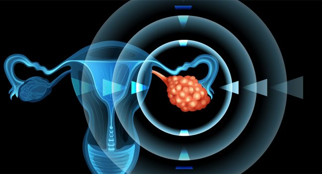Single-Cell Analysis of Ovarian Cancer Points to Potential Treatment Avenue