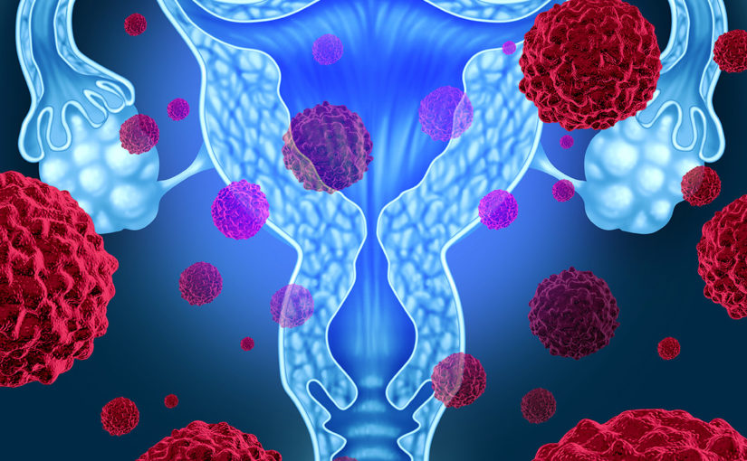 Treatment with Lipophilic Statins Shows Lower Mortality Rate for Patients with Epithelial Ovarian Cancer