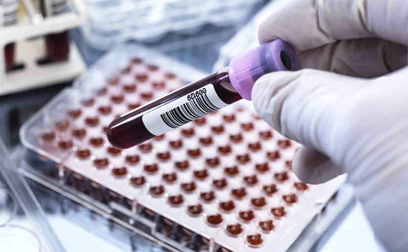 Blood Test Detects Dozens of Cancer Types, Often Before Symptoms Emerge