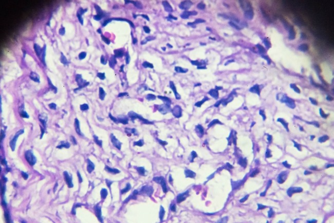 Pap Tests May Hold Biomarkers Ahead of Ovarian Cancer Diagnosis