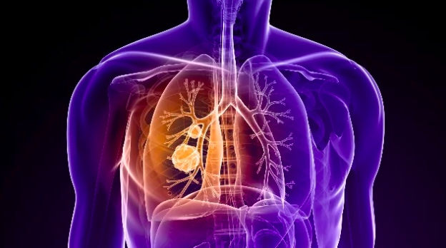 Adagrasib a Promising New Treatment for Lung, Pancreatic, Endometrial, Ovarian and Colon Cancers