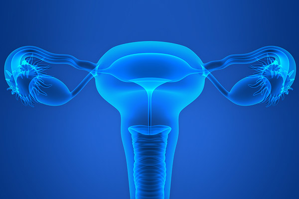 Nulliparity, Not ART, Likely Raises Risk of Ovarian Cancer