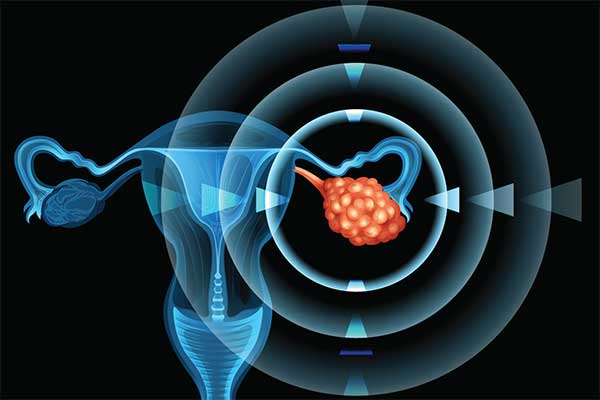 Two Pathways, One Destination: Promising Drug Combination to Treat Ovarian Cancer